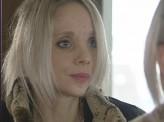 Хирурги красноярской краевой больницы восстановили лицо девушке. пострадавшей в аварии